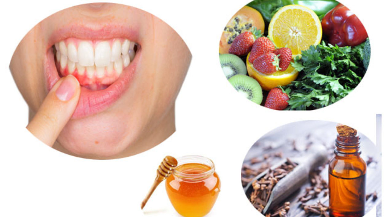Teeth Problems Home Remedies
